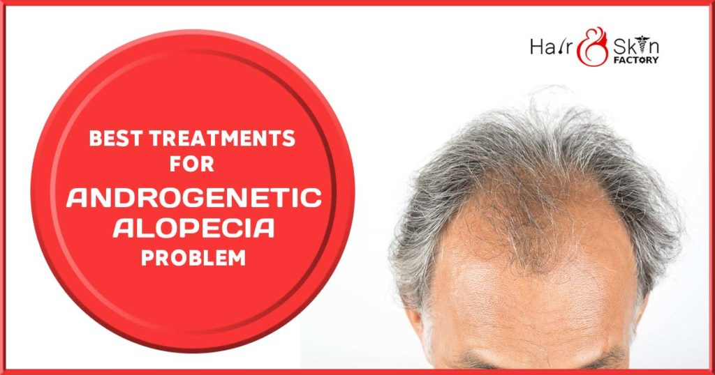 Best Treatments for Androgenetic Alopecia Problem - Hair