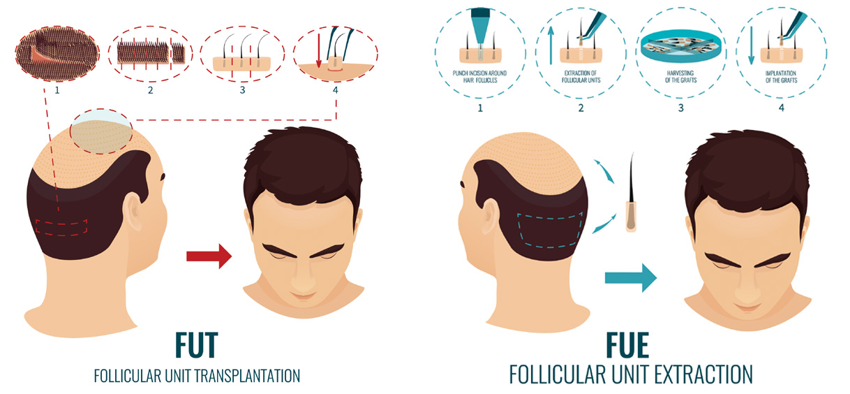FUE-And-FUT-Hair-Transplant-1024x576-3