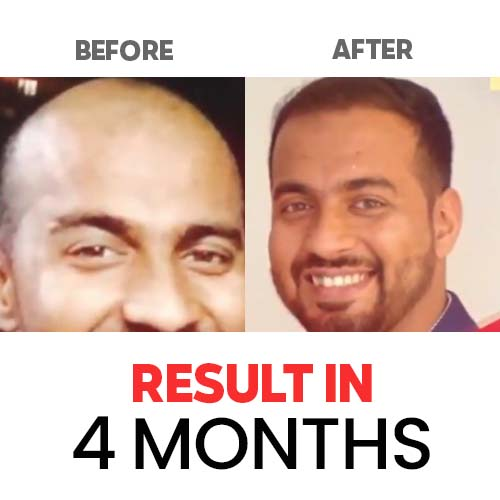 Result-Hair-and-Skin-Factory-4