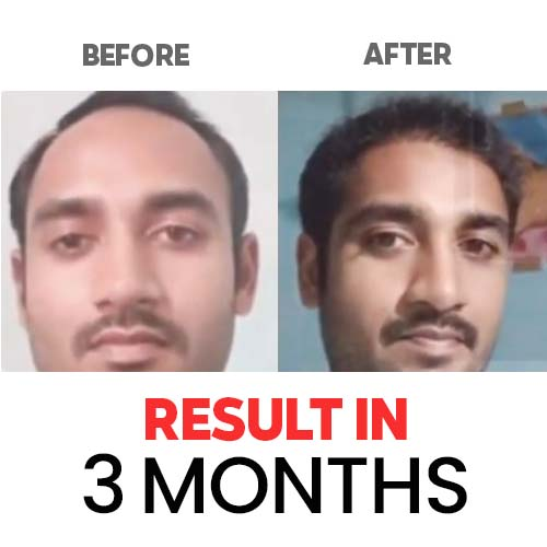 Result-Hair-and-Skin-Factory-5