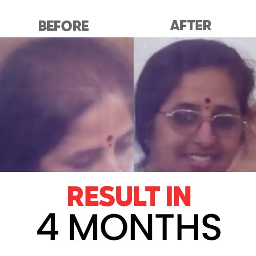 Result-Hair-and-Skin-Factory-6