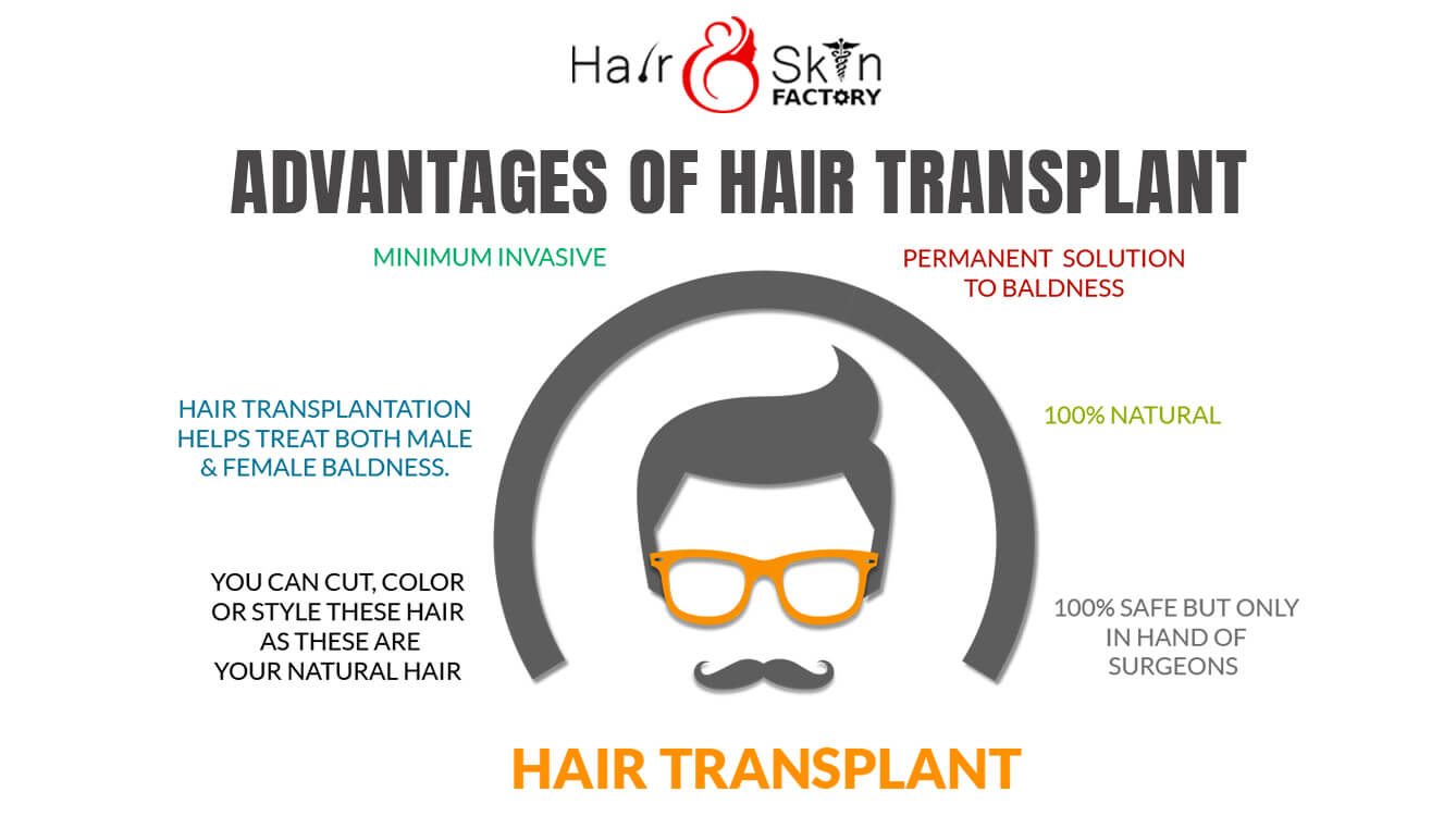 advantages-hair-transplant