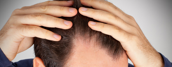 Hair Transplant In Pune